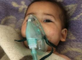 叙利亚毒气袭击已致100死400伤 包括多名儿童